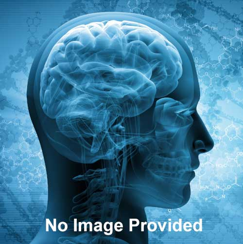 A Brain System That Appears To >> Autism Member Learning Community Page 7